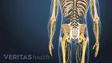 Ankylosing Spondylitis Treatment