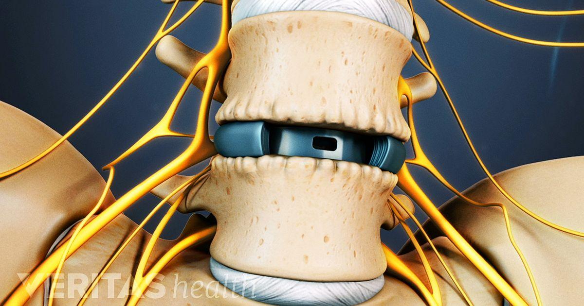 Alif Anterior Lumbar Interbody Fusion Video