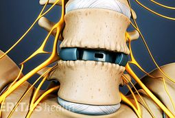 ALIF (Anterior Lumbar Interbody Fusion) Video
