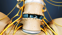 Anterior view of the lumbar store showing a cage between two vertebrae.