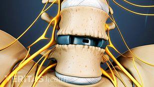 Lumbar Spinal Fusion Surgery
