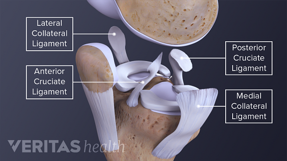 Illustration of the 4 collateral ligaments in the knee ACL, PCL, MCL, LCL