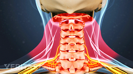 Medical illustration of the cervical spine. The muscles are highlighted in red to indicate pain, numbness, and tingling.