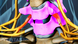 Anterior view of an artificial disc in the cervical spine.