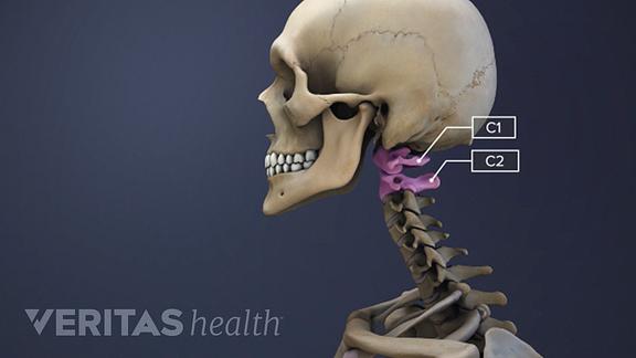 Illustration highlighting the c1 c2 vertebrae in the cervical spine.