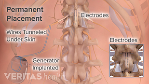 Medical illustration of an implanted generator for spinal cord stimulation