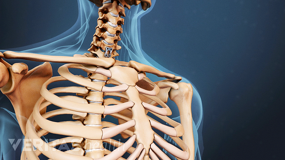 Full Range of Surgical Options for Spinal Stenosis