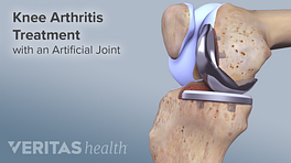 Illustration of knee with artificial joint