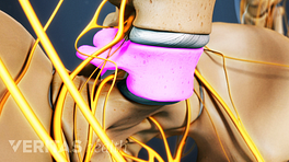 Anterior view of lumbar spondylolysis in L5.