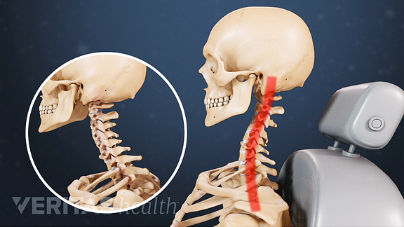 Animated video still depicting how whiplash temporarily changes the shape if the cervical spine