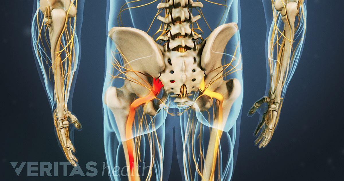 Dolor de piernas y entumecimiento: ¿qué podrían significar estos ...