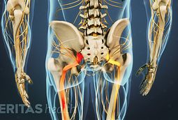 Sciatic pain often radiates along the path of the sciatic nerve.