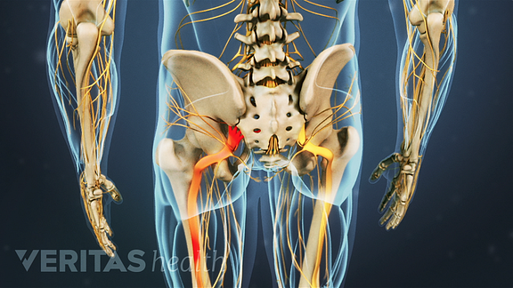 Animated video still depicting radiating pain in the sciatic nerve