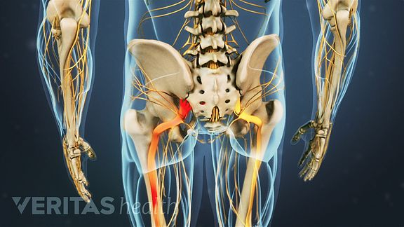 Sciatic pain often radiates from the low back or buttock, through the back of the thigh, and into the lower leg and foot.