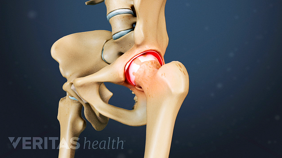 Medical illustration of a hip joint showing worn away cartilage