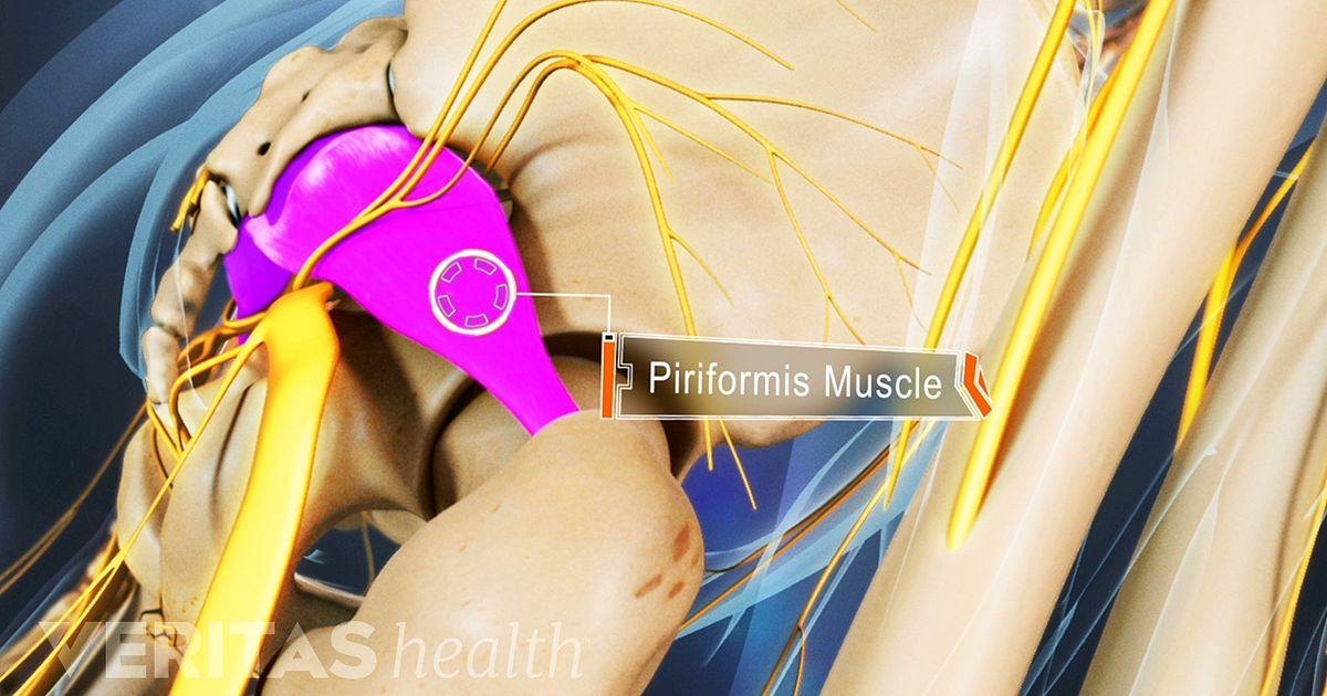 Ciático ruta nervio dolor del del