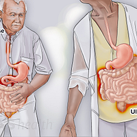 Two figures one with Crohn's disease and the other with ulcerative colitis.