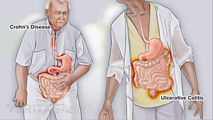 Illustration side by side comparison of Crohn's disease and ulcerative colitis