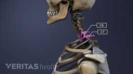 Profile view of the cervical spine with C6-C7 highlighted.