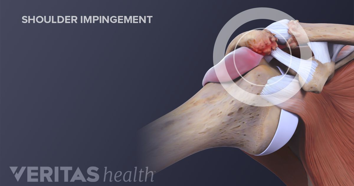 Decompression Surgery for Shoulder Impingement