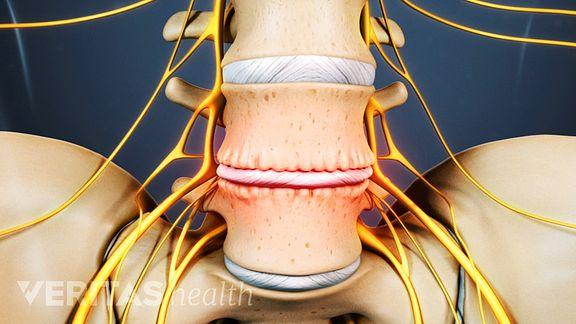 ALIF (Anterior Lumbar Interbody Fusion)
