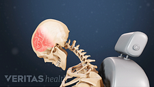 Profile of head forward from impact that causes whiplash