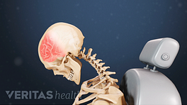 Profile view of whiplash impacting the neck and causing trauma to the front of the skull.