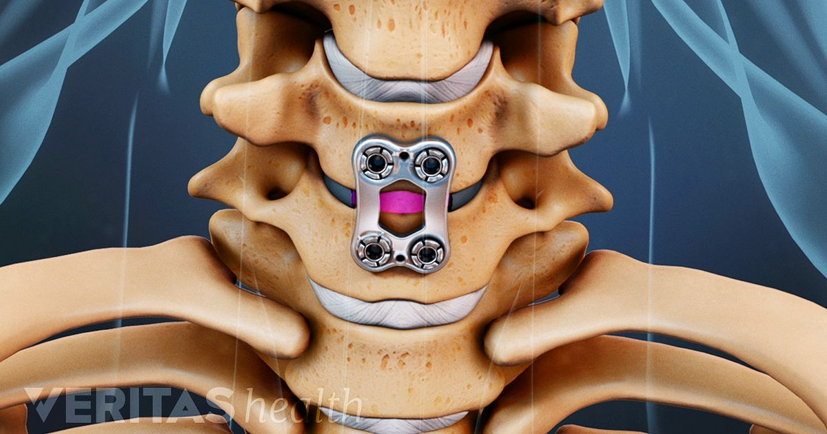 Artificial Disc Vs Anterior Cervical Discectomy And Fusion