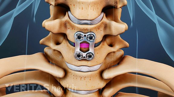 A Visual Guide To Anterior Cervical Discectomy And Fusion