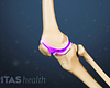 Profile view of the knee highlighting the cartilage.