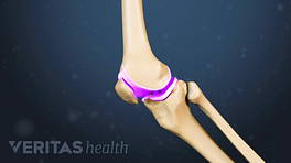 Profile view highlighting the cartilage in the knee joint behind the knee cap.
