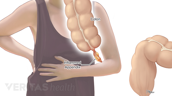 Dull pain on right side of stomach below ribs