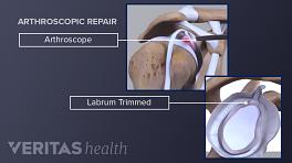 Arthroscopic repair of a labrum tear, highlighting the trimmed labrum and arthroscope