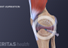 Arthrocentesis involves using a needle and syringe to remove fluid from a swollen painful joint