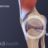 Side view of the knee showing swelling from ACL tear with a needle injected into the swelling.