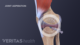 Medical illustration showing aspiration in a knee to reduce swelling