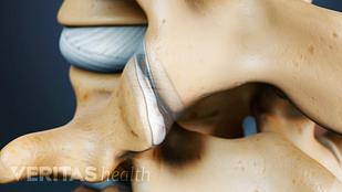 Spine arthritis in the facet joints of two vertebra.