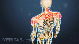 Posterior view highlighting pain in the upper back and shoulders.