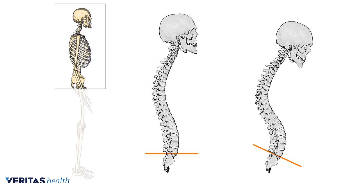 Posture To Straighten Your Back