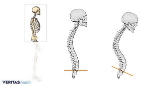 Illustration showing incorrect and correct spinal posture