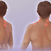 Illustration of trigger points on the neck and upper back