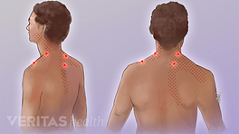 Posterior views of the location of trigger points