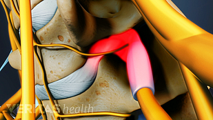 Animated video still of a cervical herniated disc