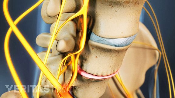 Lumbar osteophytes are bone spurs that grow in the low back due to degenerative changes.