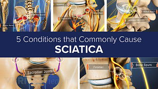 Five conditions that commonly cause sciatica slideshow cover