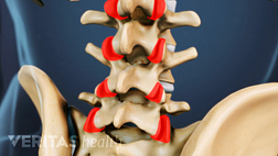 Close up view of a medical illustration of the lumbar spine. The facet joints are highlighted in red.