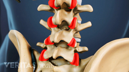 Highlighting facet joints of the lumbar spine
