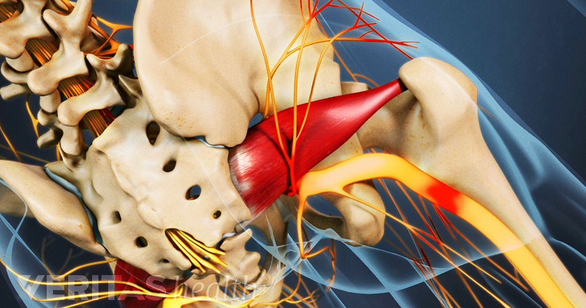 Myths About Sciatica Treatment Options