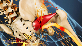 Posterior view of the pelvis showing compression in the sciatic nerve.