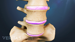 Slipped disc in the lumbar spine
